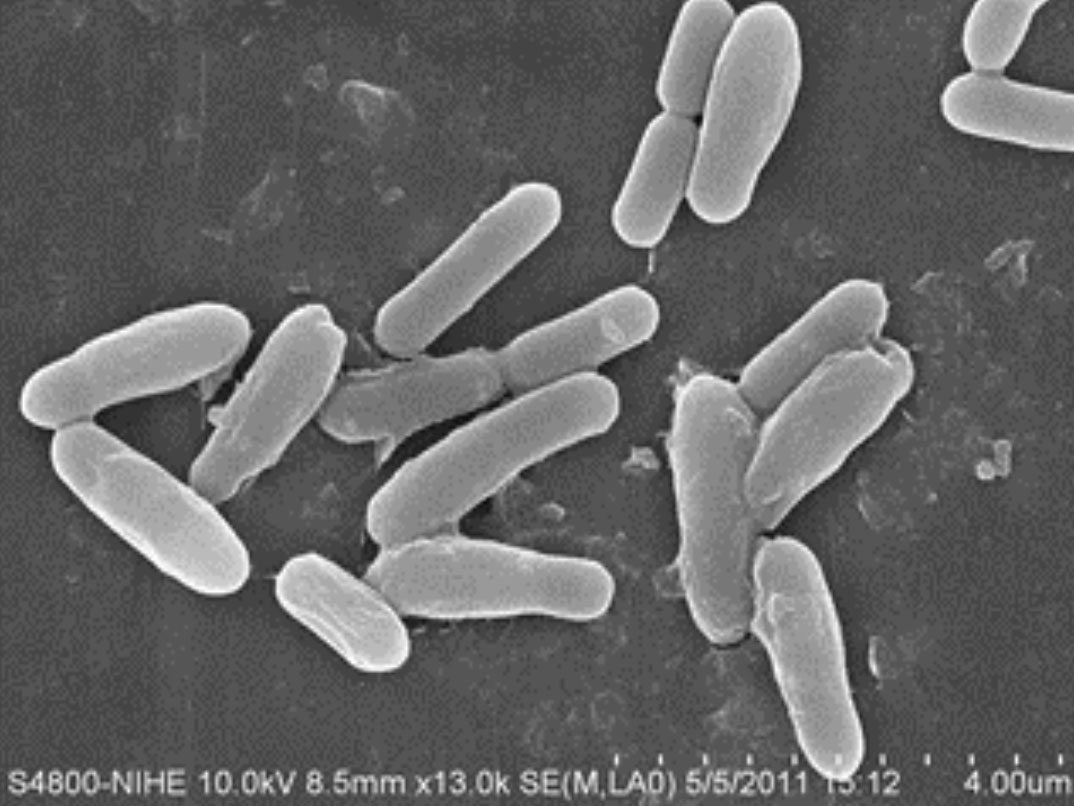 Cell shape of bacteria SHV.22