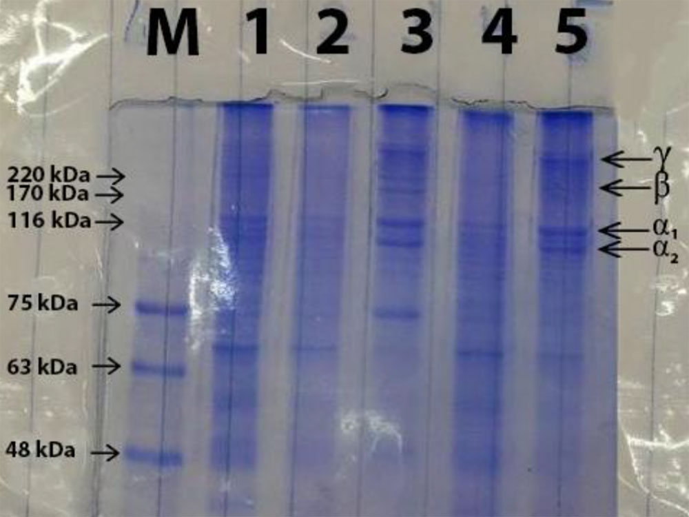 Electrophoresis result SDS-PAGE gelatin after extraction using different acids for the pre-treatment stage