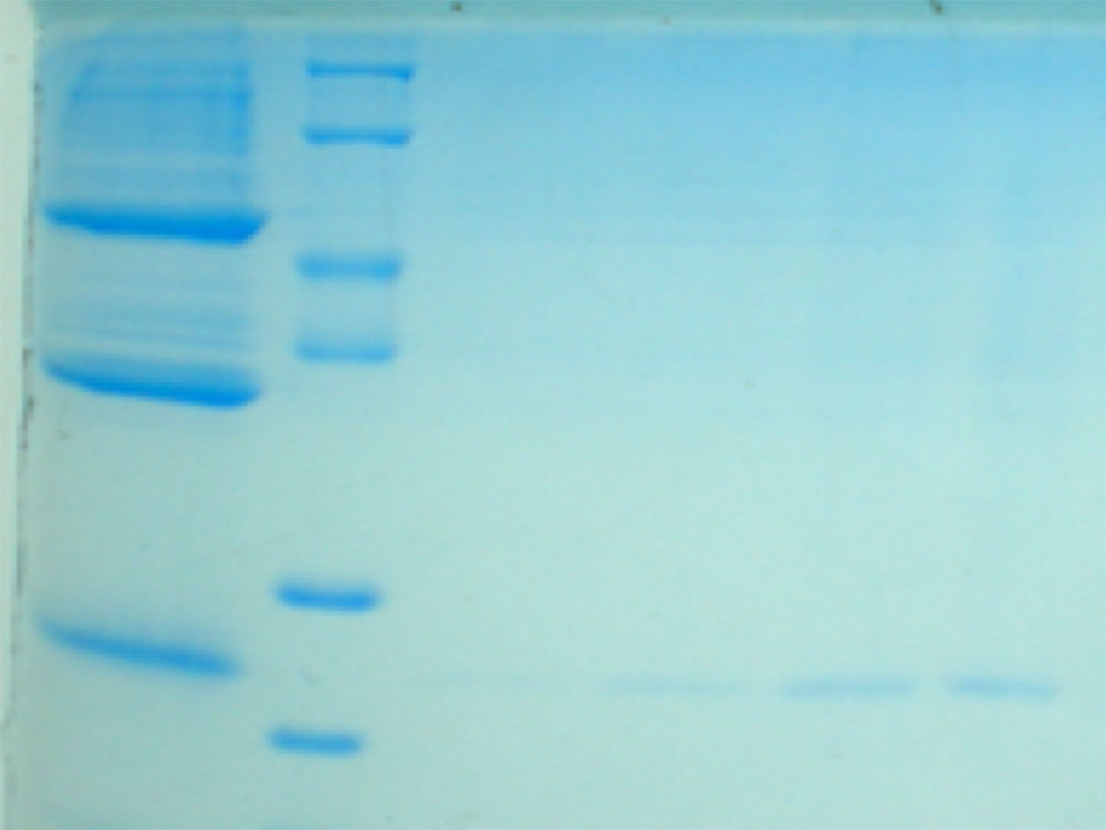SDS-PAGE of the purified xylanase from A. oryzae DSM1863 through Sephadex G-200 and DEAE-cellulose